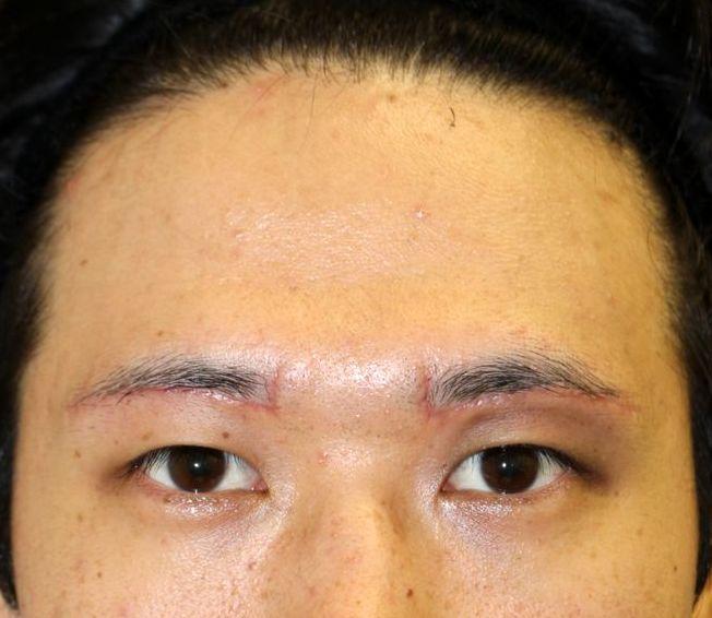 下 っ プラスト 眉 切開 く に くり まぶたの手術後のかたの眉下切開