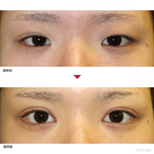 T 眼瞼下垂手術+目頭切開 症例経過写真