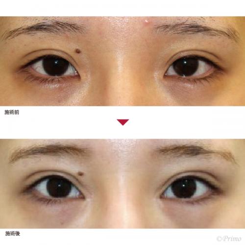 Y 眼瞼下垂手術+目頭切開 症例経過写真