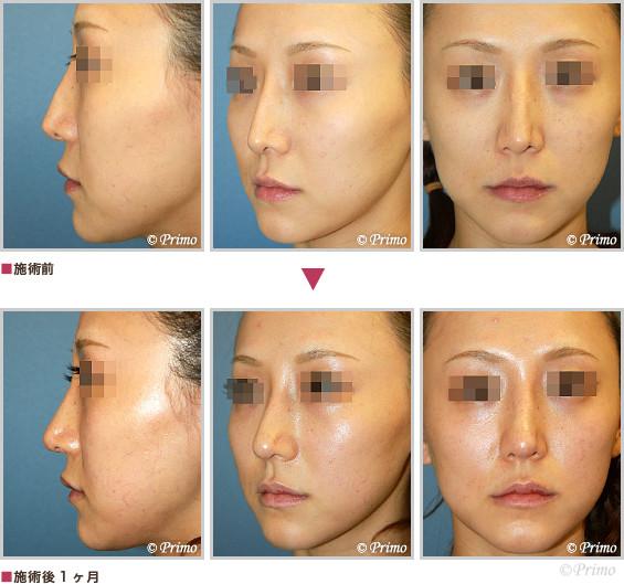 BL 鼻中隔延長術+鼻プロテーゼ入れ替え+整鼻術+眉間プロテーゼ 症例経過写真