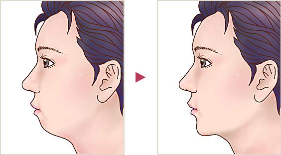 整形 する 顎 短く