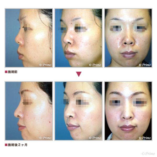 D 鼻プロテーゼ入れ替え術+鼻中隔延長術 症例経過写真