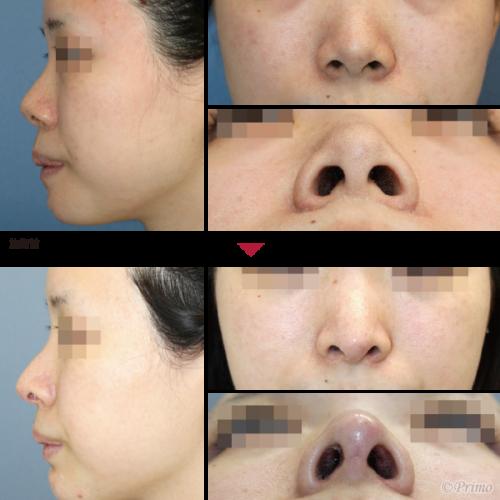 鼻翼縮小術 症例一覧   鼻整形  ...