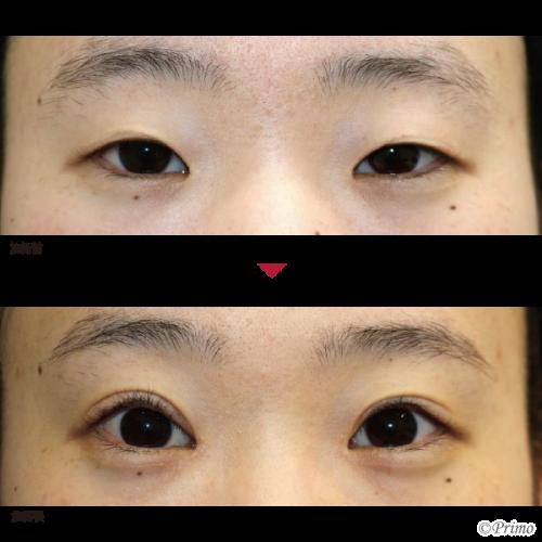 BJ 眼瞼下垂+目頭切開手術 症例経過写真