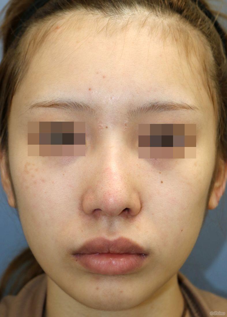 H 整鼻術+鼻中隔延長術+鼻背部軟骨移植術+鼻翼縮小術(小鼻縮小術)内側法+鼻孔縁挙上術手術後3ヶ月の経過写真