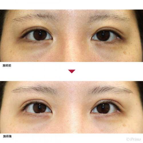 CC 他院眼瞼下垂修正術+ROOF切除術+下眼瞼脱脂術 症例経過写真