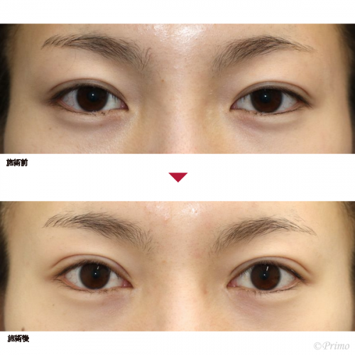 眼瞼下垂手術 眼瞼下垂 目の整形
