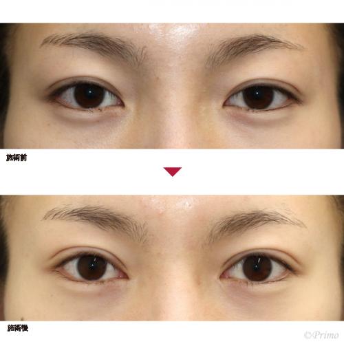 CQ 眼瞼下垂手術+目頭切開 症例経過写真